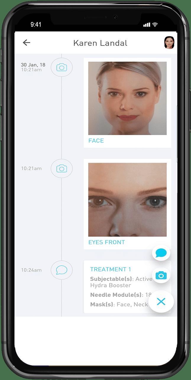 gezichtsbehandeling via een app