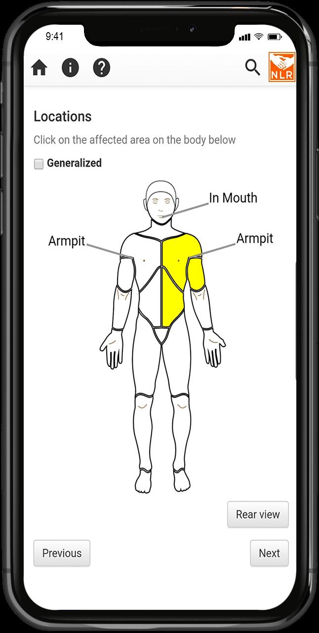 huiddiagnose via de app